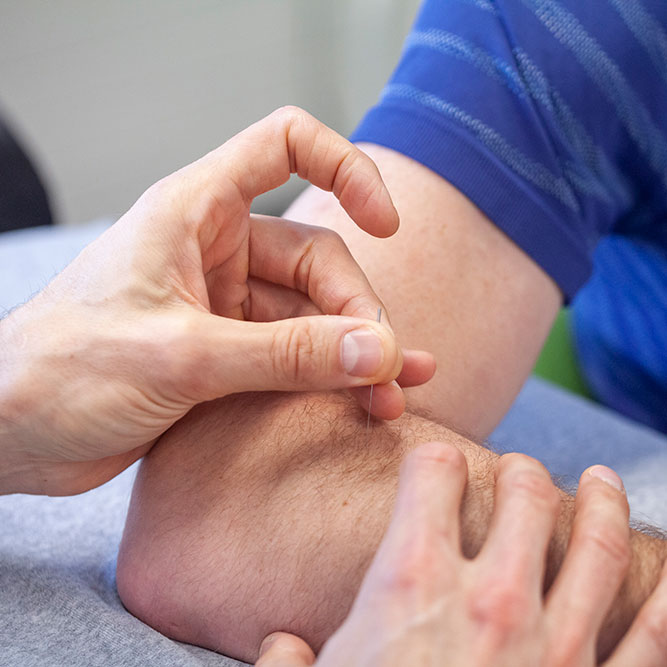 Dry needling - Chiropractie Tiel Zutphen